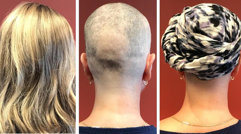 cancerhjalpen_haretscarf